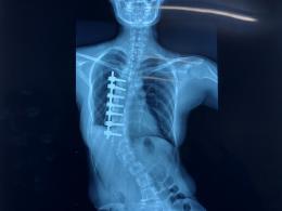 27岁女子脊柱侧弯呈S型,医院携手公益项目为其手术