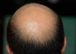 90后年轻男子严重脱发,医院诊断为斑秃