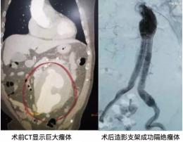 "15cm巨大""人体炸弹""来袭,血管外科团队妙手拆除"