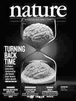 """科学家""""复活""""猪脑!谈""""复活""""人脑为时尚早,但为阻断退化带来希望"""