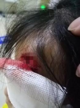 游乐园又出事!未系好安全带,长沙4岁女童春游受伤头部缝十针