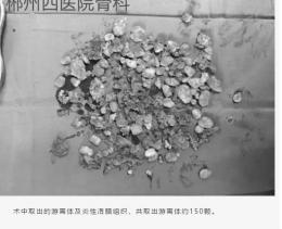 33岁女子髋关节卡壳,医生手术取出150粒软骨颗粒