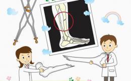 """9歲女童摔傷骨折,醫生用""""捶擊法""""復位"""