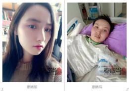 被蚊子咬一口,21岁女孩躺重症监护室一年,花了70多万元